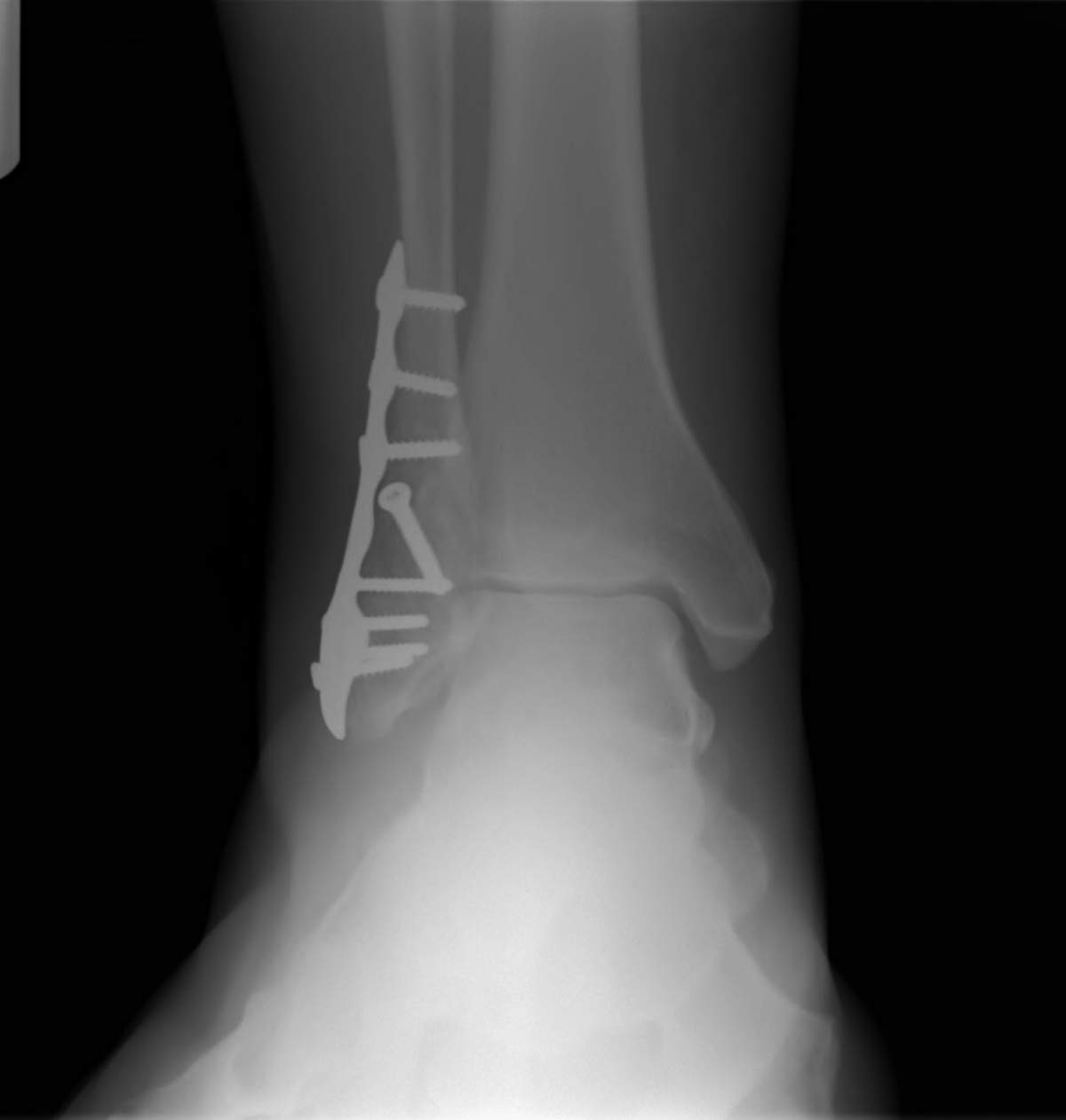 Ankle Fracture Repair with Plates and Screws