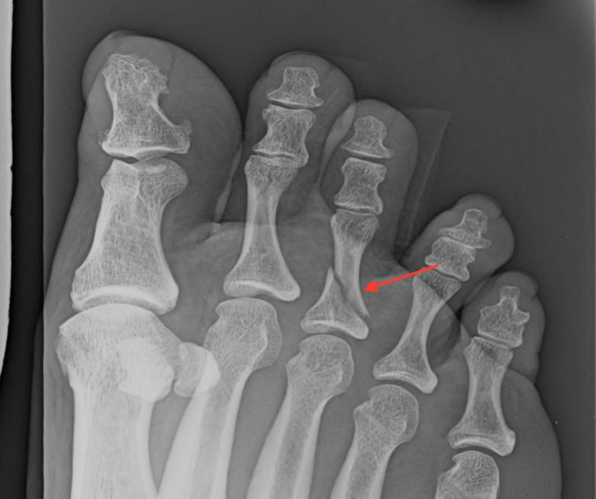 Displaced Fracture of Toe