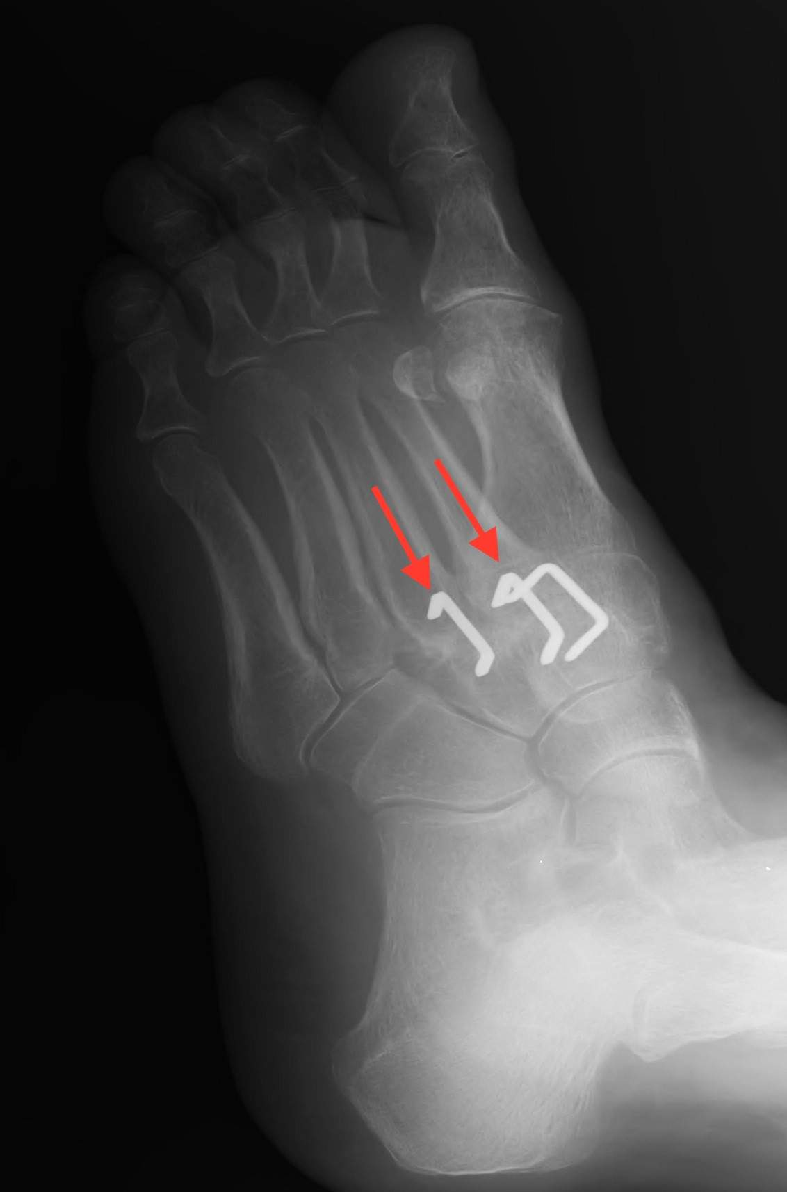 Post Arthritic joint in the midfoot