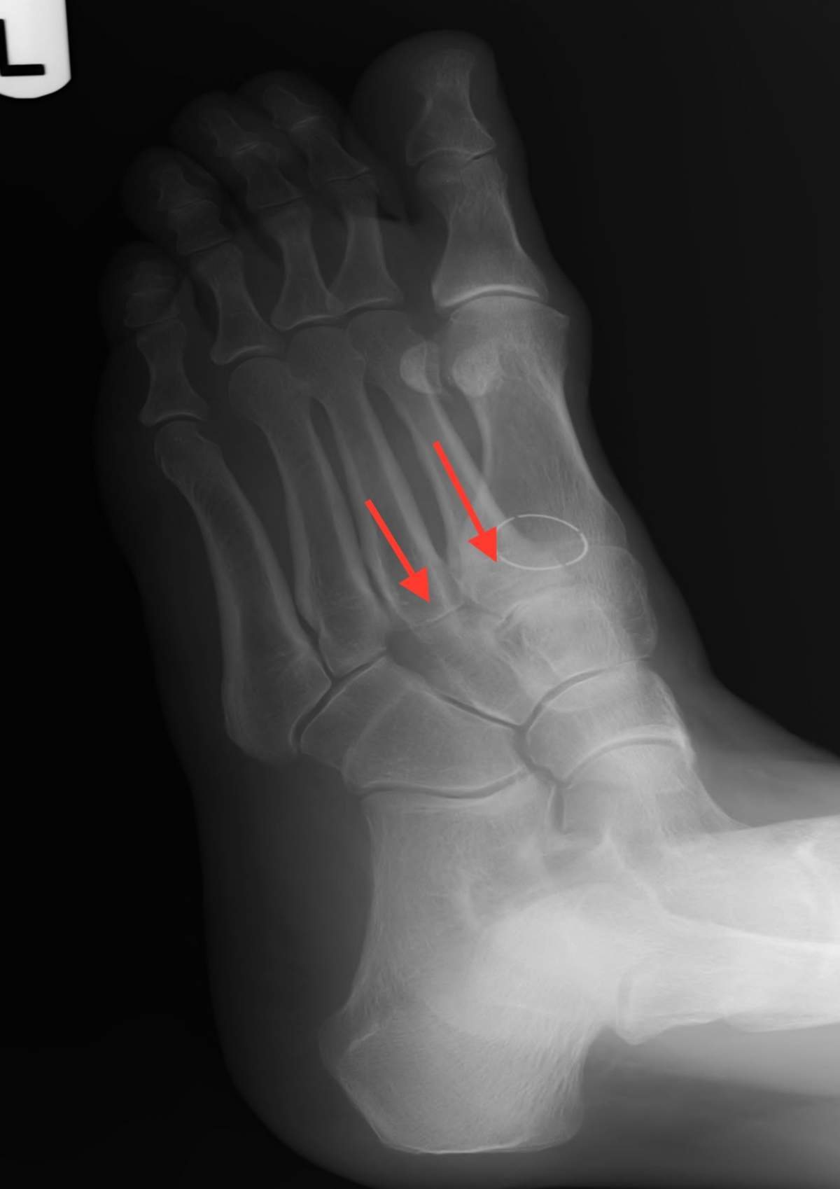 Pre Arthritic joints in the midfoot