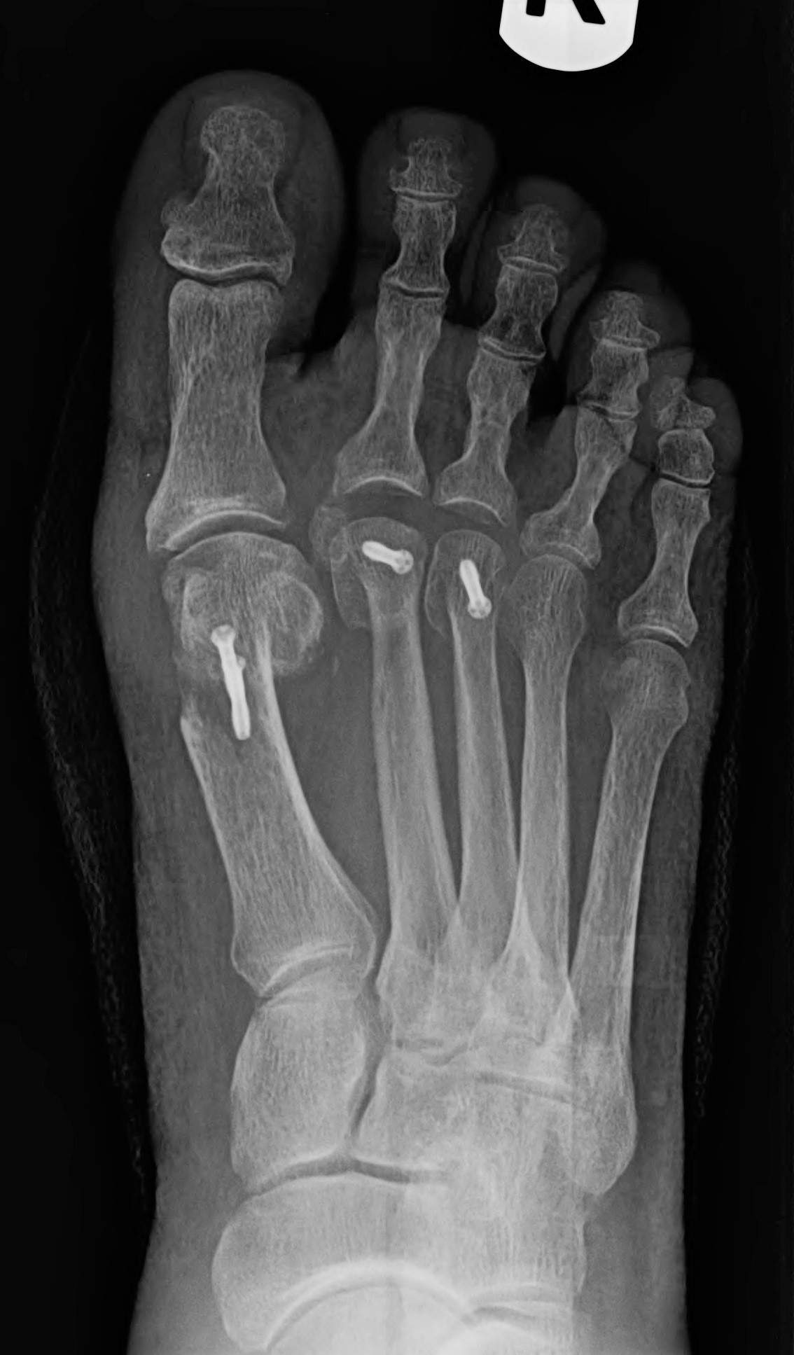 Bunion with Misaligned Toes