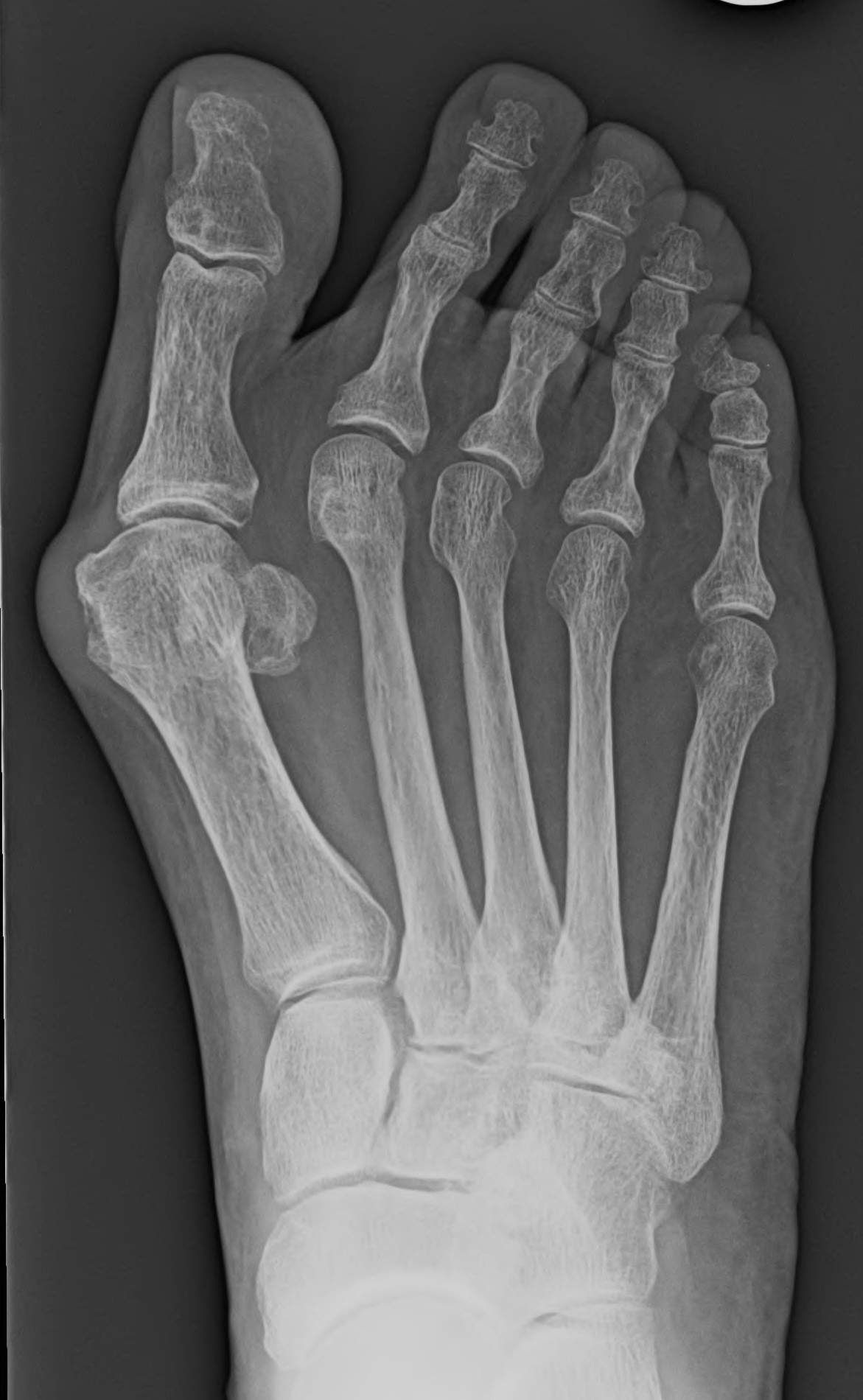 Bunion with Malaligned Toes