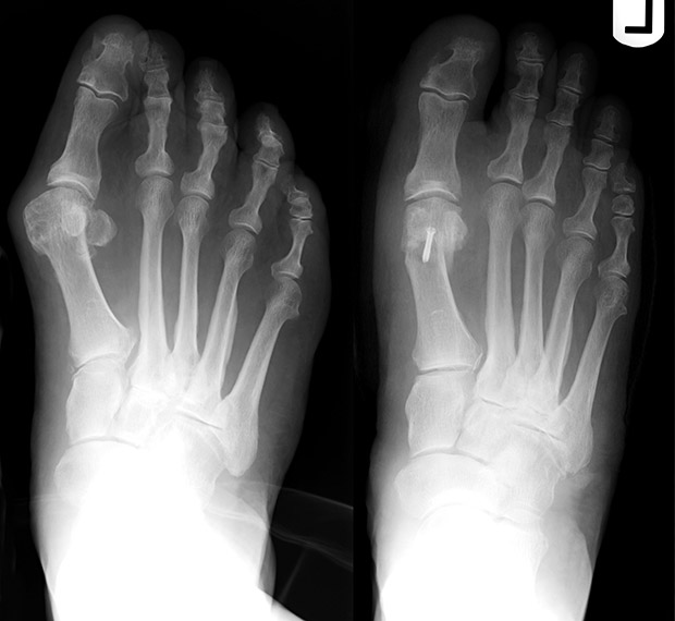 X-Ray of Bunnon and Hammertoe After Surgery